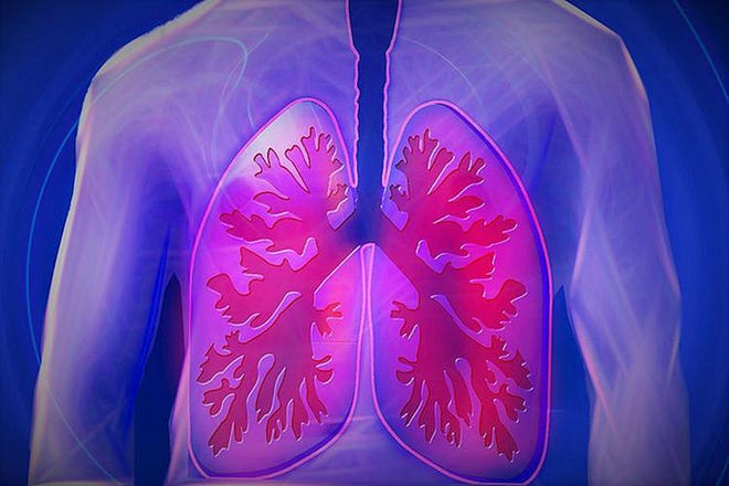 According to the Lung Cancer Foundation of America, lung cancer kills more people than the other three leading cancers (breast, prostate and colorectal) combined.