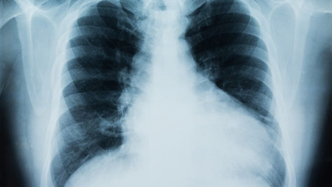 Certain medications increase lung complications.