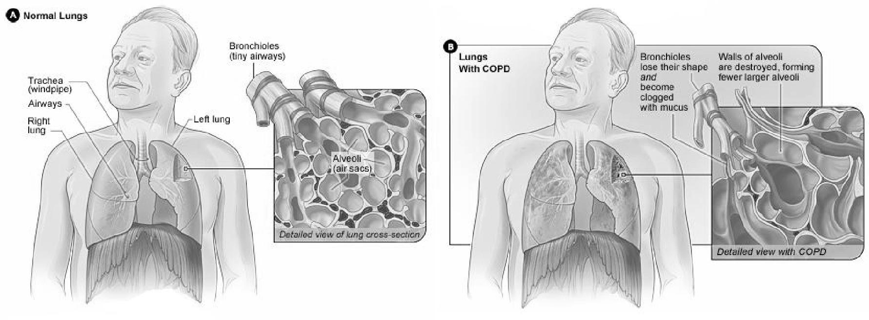 Limit the impacts of COPD