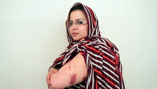 Sultana Khaya, pro-independence activist in Western Sahara, said she was beaten by the Moroccan police.