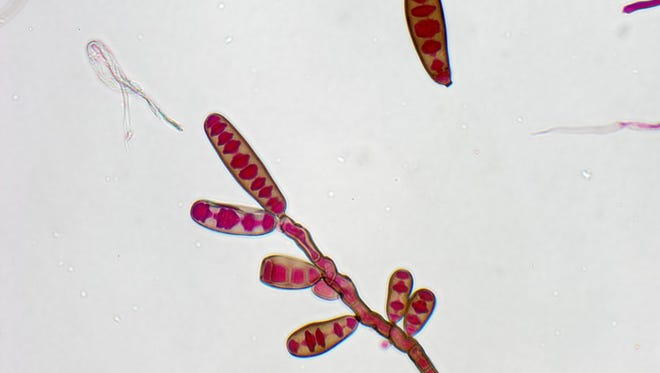 The Exserohilum rostratum fungus is one of two pathogens blamed for the meningitis outbreak.