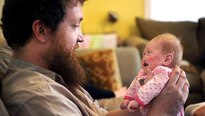 Eric Brown holds his daughter Pearl Joy who has alobar holoprosencephaly, a rare genetic condition.