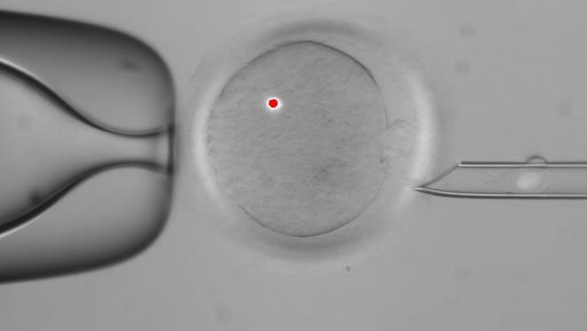 A white blotch in the tube at right is DNA that has been removed from a human egg, center. The red dot is from a laser used in the procedure. Scientists have successfully transplanted DNA between human eggs and grown them into early embryos.