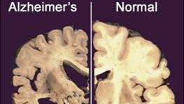 This image shows a cross section of a normal brain and one damaged by advanced Alzheimer's disease.