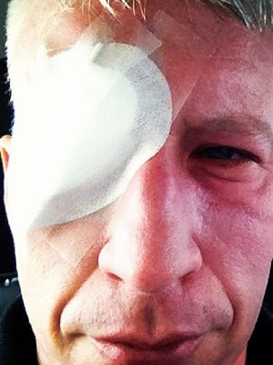 Anderson Cooper shares a shot of his sunburned eye.