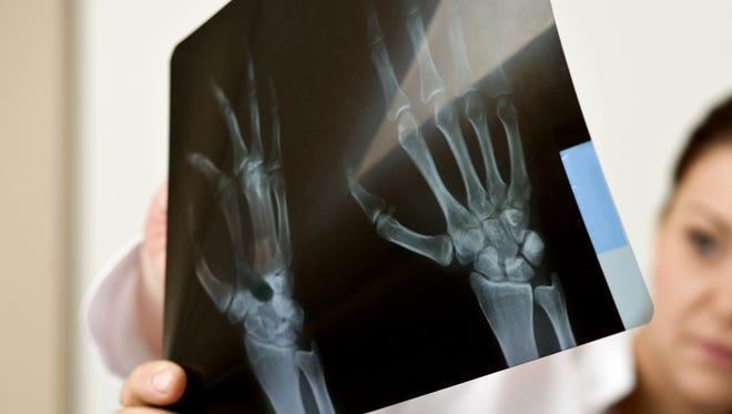If an X-ray detects a fracture, a bone-density test is recommended for patients age 50 and older.