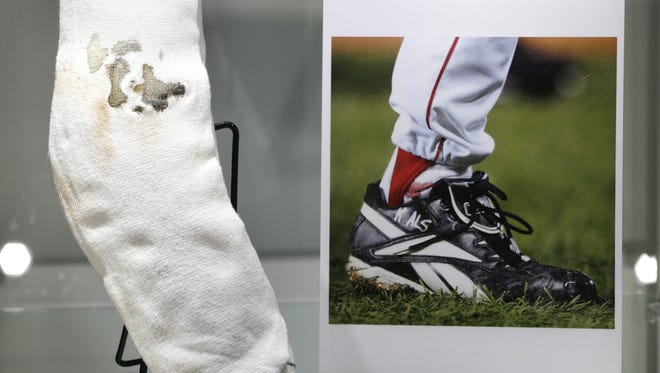 The bloody sock worn by former Boston Red Sox pitcher Curt Schilling in Game 2 of the 2004 World Series.