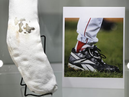 2013-02-23 Curt Schilling bloody sock