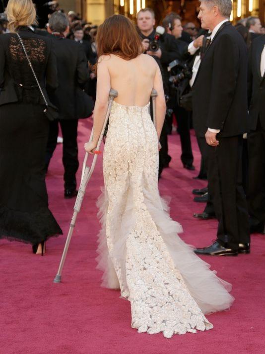 Kristen Stewart hobbles to red carpet in crutches