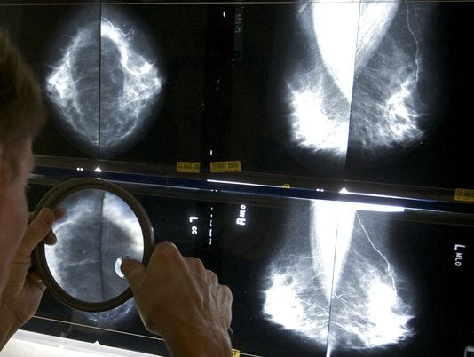 Deadly breast cancers are rising in young women