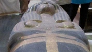 CT reconstruction showed that Egyptian scribe Hatiay, thought to be 40 to 50 years old, had carotid artery disease.