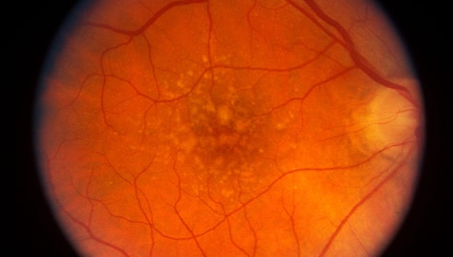 "This photograph shows the macula (central retina) of a patient with dry AMD, showing the yellowish deposits called ""drusen"" that progressively accumulate, which are associated with focal degeneration of visual cells and loss of central vision."