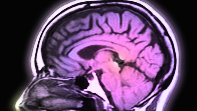 In multiple sclerosis, communication between the brain and other parts of the body can be hindered.