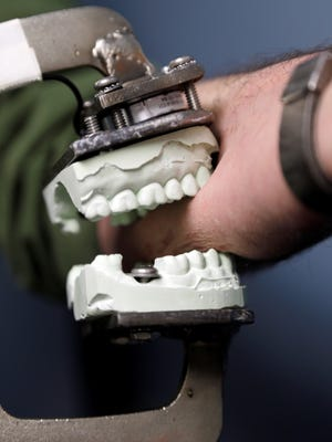 Peter Bush, research scientist at the University at Buffalo,  demonstrates a modified Vise-Grip tool attached to a dental mold that is used for test bites in skin, at the school in Buffalo, N.Y.