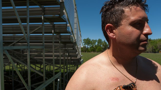 The scar from Jonathan Stelly's pacemaker surgery is visible on his chest. Stelly had dreams of playing professional baseball, but the surgery he had at 22 meant it would never happen. He later learned that he hadn't needed the surgery.