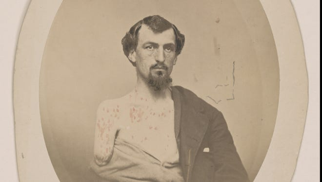 John F. Chase lost his right arm and left eye at Gettysburg. This image of Chase is one of the documents the Library of Congress will put on display as part of an exhibit on the Civil War.
