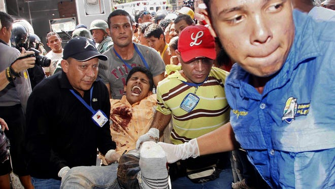 An injured prison inmate is carried into the hospital in Barquisimeto, Venezuela,  Friday, Jan. 25, 2013. AP Photo/Alexander Sanchez/El Informador)