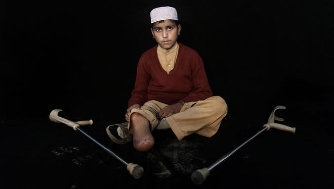 In this Thursday, Feb. 21, 2012, photo, Pakistani student Hazratullah Khan, 14, who was injured in a car bombing on December 17, 2012 in Peshawar, poses for a picture in Peshawar, Pakistan.