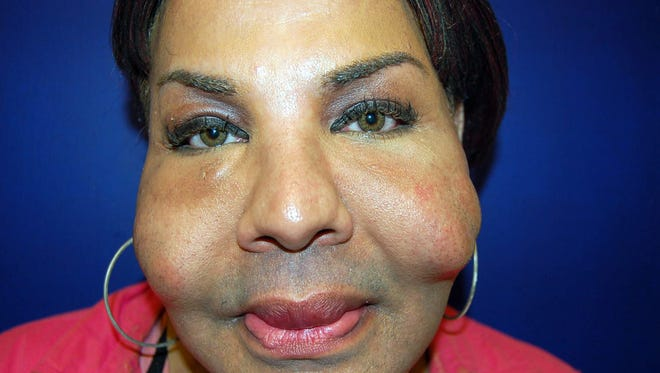 This Sept. 12, 2006, photograph provided by Dr. John J. Martin Jr., who specializes in eyelid and facial plastic surgery in Coral Gables, Fla., shows the damage illicit cosmetic procedures can cause recipients such as Rajindra Narinesinch, a patient whose face shows nodules from previous illicit procedures.