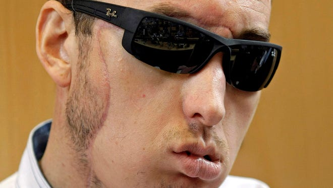 Poland's first face transplant patient attends a press conference after he was discharged from the hospital, in Gliwice, Poland, Tuesday.