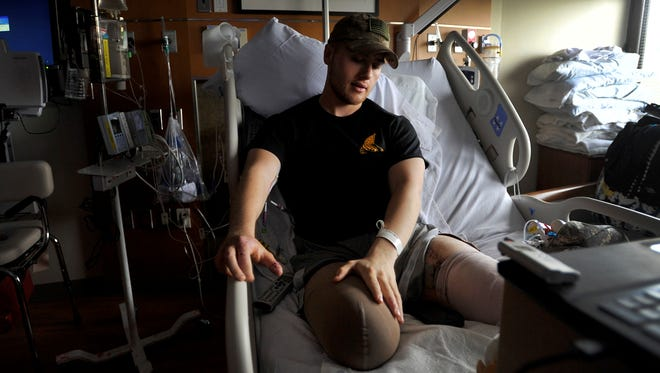 Sgt. Adam Hartswick, of Pine Grove Mills, Pa., rubs his leg while in his hospital bed at Walter Reed National Military Medical Center in Bethesda, Md., on June 20, 2013. Hartswick lost both legs and his right index finger in an IED blast in Afghanistan in May.