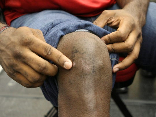 2013-08-02 greg Oden scar