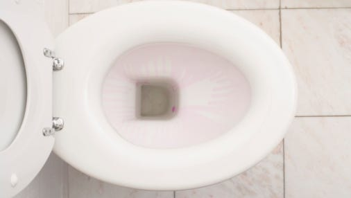 A security company warns an app tied to a Japanese smart toilet could leave commode prone to hacking.