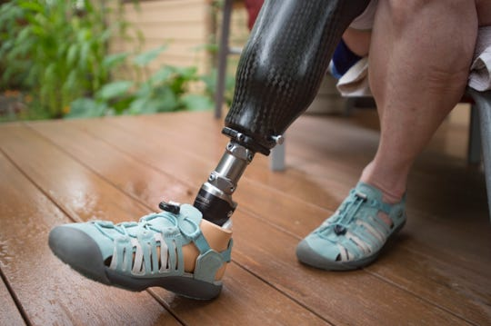 Tracy Hickey poses for a photo with her prosthetic leg at her Fort Collins home on Tuesday, July 17, 2018. Hickey decided to donate her amputated leg to search and rescue after a climbing accident in Wyoming.