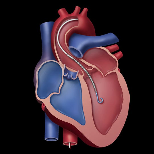 Impella cardiac pump inserted into the heart.