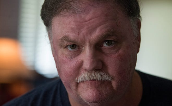 Montgomery Public School employee Alan Owens is shown at his home in Montgomery, Ala. on Monday July 23, 2018. MPS is not granting him sick leave for one of his surgeries, and he may lose his job because he can no longer perform the strenuous work since the injuries.