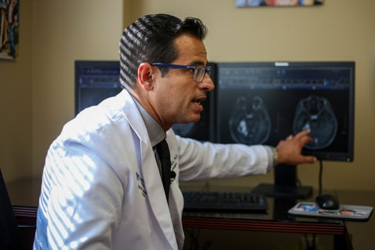 Dr. Shervin Dashti, Neurosurgeon at Norton Healthcare, explains a patient's scan showing a reduction in lesions caused by radiation necrosis in his office at Norton Neuroscience Institute in Louisville, Ky. on Monday, August 6, 2018.