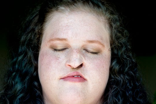 Cancer survivor Marisha Dotson poses for a portrait at her north side apartment in Knoxville, Tennessee on Wednesday, August 8, 2018. The Clinton, Tennessee native was diagnosed with extremely aggressive squamous cell carcinoma on her nose, and has since undergone 49 facial surgeries to treat the cancer and repair her face.