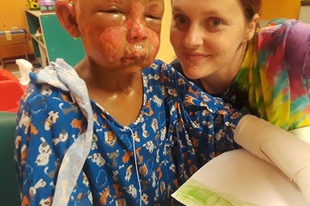 Ashley Lyons and her son Julien Sandlin, who was doused in nail polish remover and set on fire by another child