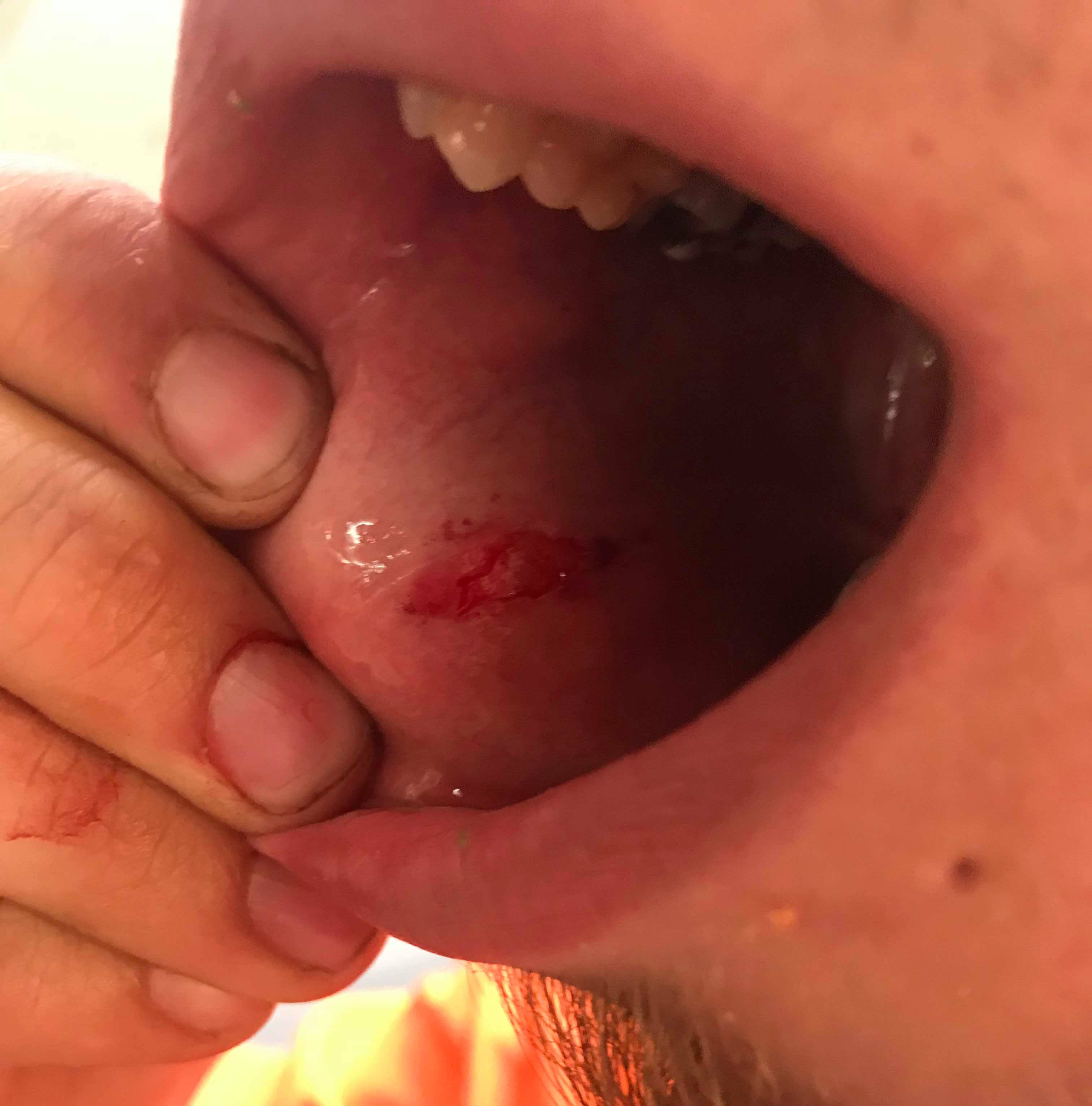 Man claims mouth 'filled with blood' after trying Dragon Breath at Haywood Mall