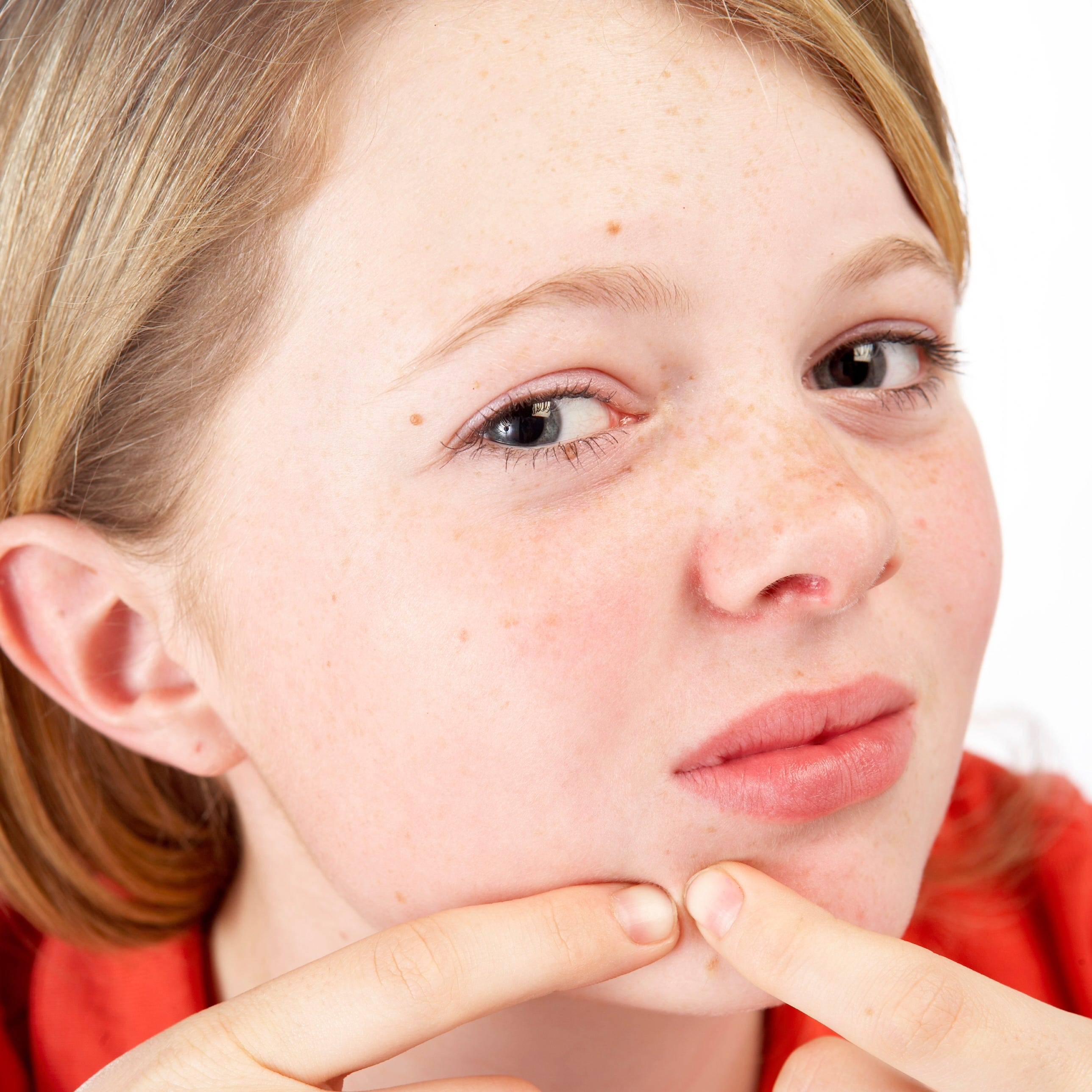 Zits happen: Guide your kids through this rough patch