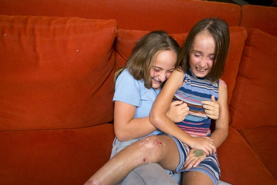 Katie Hendrickson, 11, left, tickles her younger sister, Lizzy, 9, in their Phoenix home. Lizzy has a form of a rare genetic condition called epidermolysis bullosa that causes the tip layer of her skin to blister and break at lighter-than-average bumps, nudges or even touches.