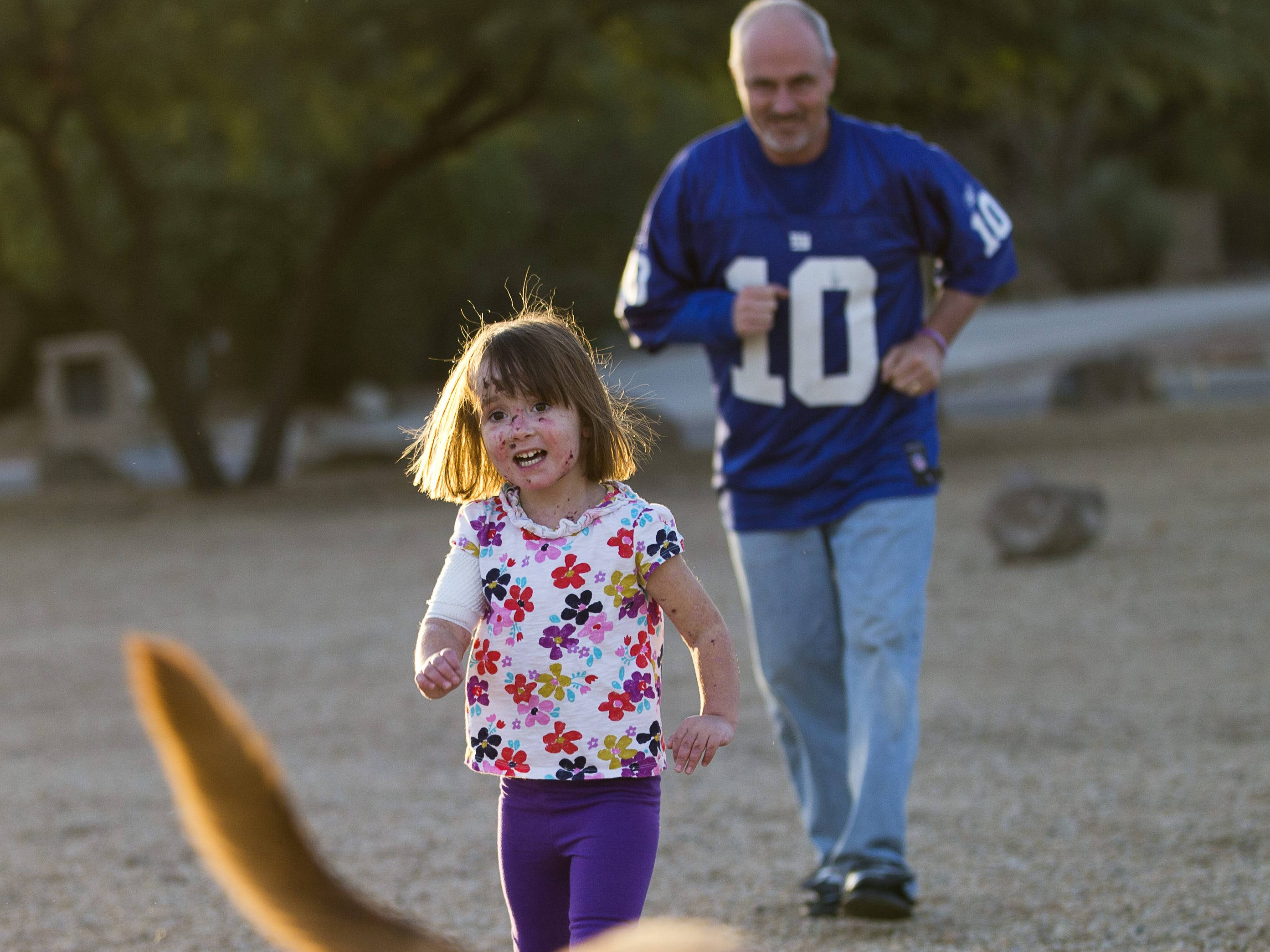 "Rob Hendrickson plays with his daughter, Lizzy and their dog Jesse, outside their Phoenix home in December 2012. Lizzy suffers from a form of epidermolysis bullosa, aka ""butterfly syndrome,"" where her skin is extremely fragile."