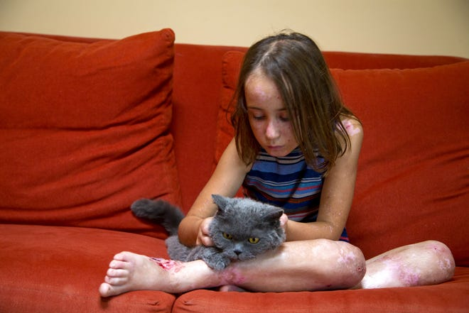 Lizzy Hendrickson, 9, pets her cat, Buddy, in her Phoenix home. Lizzy has form of a rare genetic condition called epidermolysis bullosa that causes the tip layer of her skin to blister and break at lighter-than-average bumps, nudges or even touches.