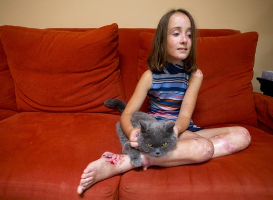 Lizzy Hendrickson, 9, pets her cat, Buddy, in her Phoenix home. Lizzy has a rare genetic condition called epidermolysis bullosa that causes the tip layer of her skin to blister and break at lighter-than-average bumps, nudges or even touches.