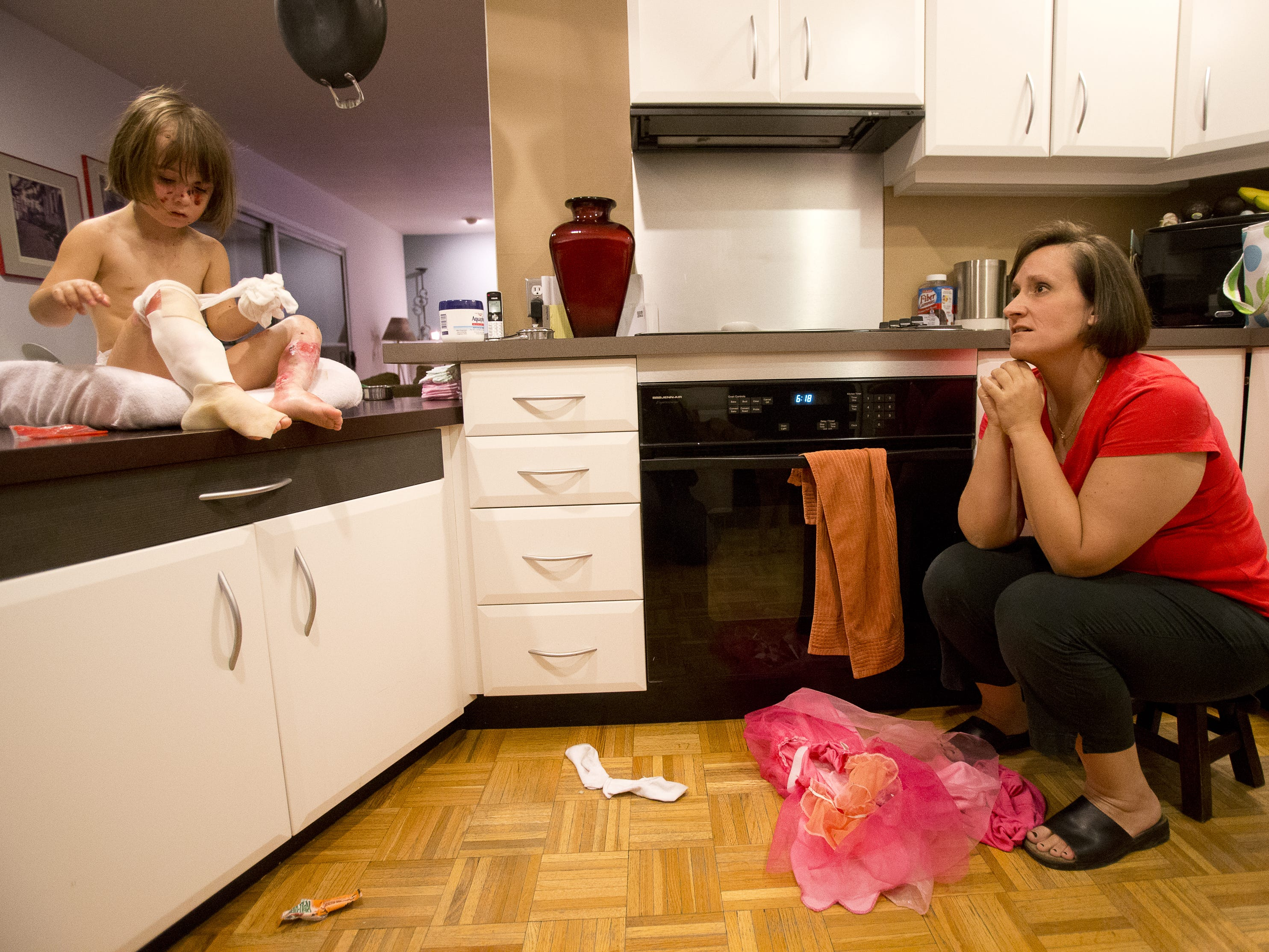 Lizzy Hendrickson removes bandages from her legs in this 2013 photo as her mom, Kristin, watches. Lizzy has a form of epidermolysis bullosa, which makes her skin extremely fragile.