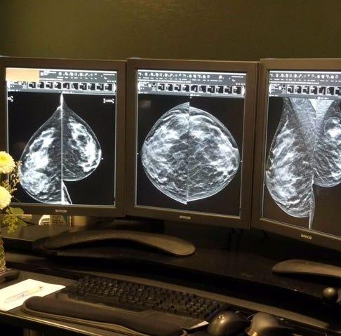 Ofrece Salinas Valley Memorial Hospital mamogramas tridimensionales