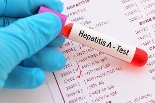 Tennessee's growing hepatitis A outbreak has caused its first death, state officials announced Wednesday.