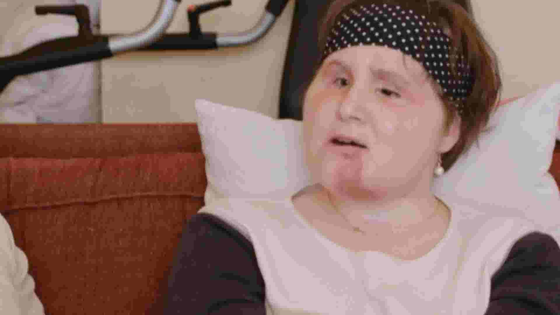 Youngest Face Transplant Recipient In Us History Finds Hope After Attempt