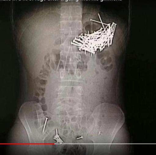 Doctors remove 87 nails, 7 push pins after man eats them