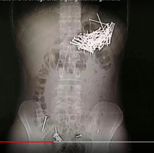 Doctors remove 87 nails, 7 push pins after man eats them