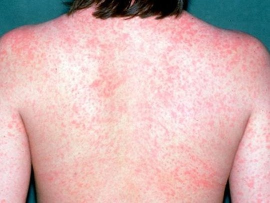 Federal health officials say 107 people have contracted the measles so far in 2018 in 21 states, including Indiana.