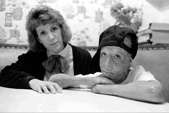 In this undated photo, David Rothenberg, right, who was set on fire by his father in an Orange County hotel room is shown with his mother, Marie Rothenberg in California. Rothenberg, known as Dave Dave, has died. He was 42. Clark County Coroner John Fudenberg says Dave died on July 15, 2018, at a Las Vegas hospital. The cause of death is under investigation. Dave was a respected Las Vegas artist and a close friend of Michael Jackson.