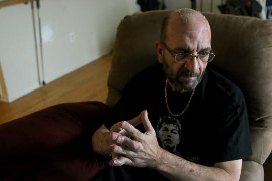 """Victor """"Buddy"""" Cordato, a 57-year-old who has Parkinson's disease, recently had electrodes implanted in his brain to control the tremors and spastic movements of the disease. On Monday, he is allowing us to see the moment when the deep-brain-stimulation device is turned on."""