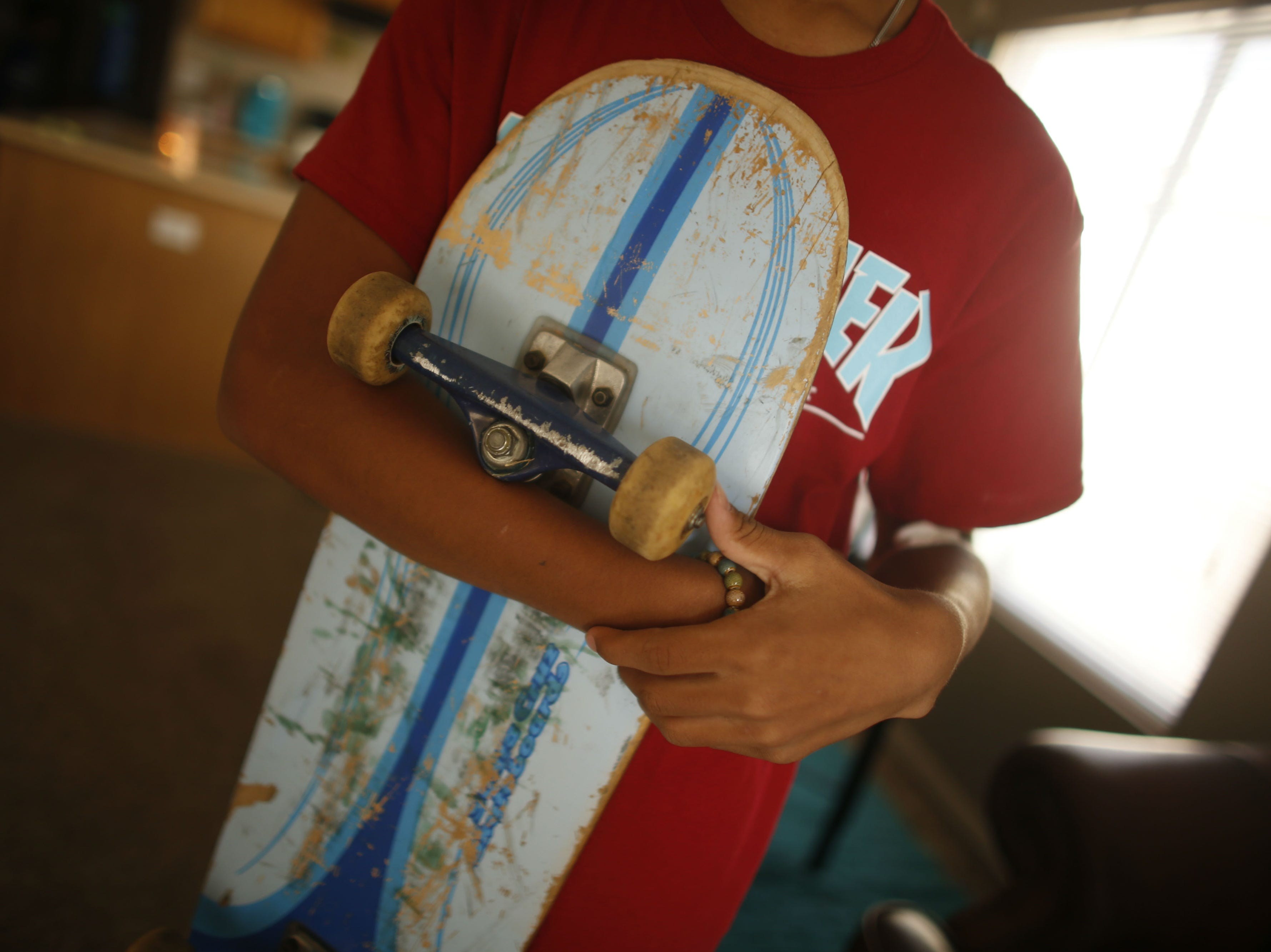 Josiah Wiedman holds his skateboard, which he believes helped protect him from the full force of the lightning, at their home in El Mirage on Aug. 16, 2018.