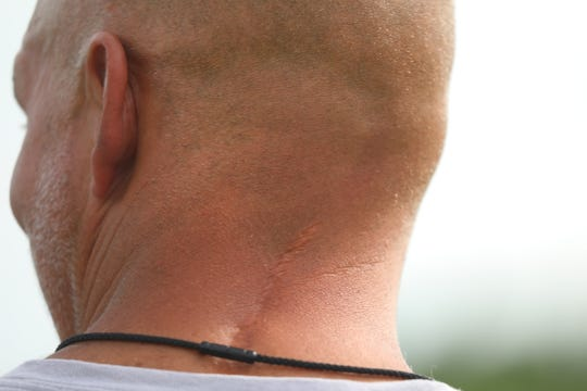 Victor High football coach Geoff Mandile was a quarterback at Ithaca College broke and fractured bones in his neck that ended his football career in Oct. 1989.  A scar is still visible on his neck.